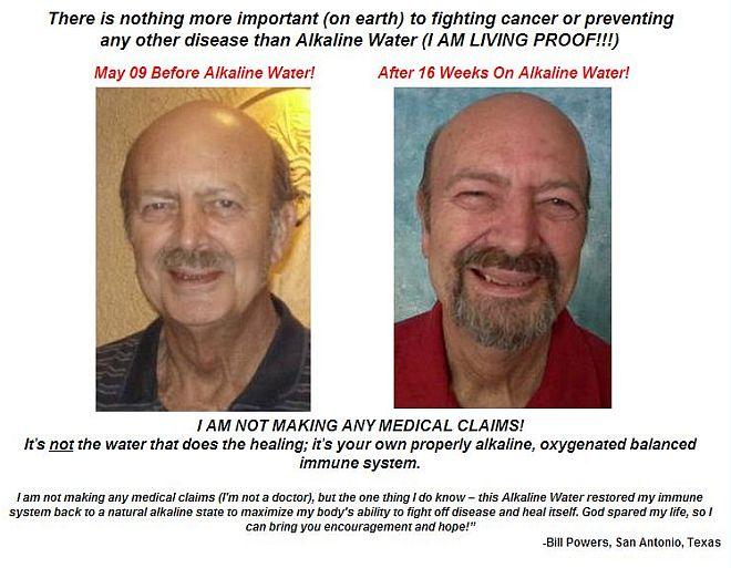kangen water for skin disease